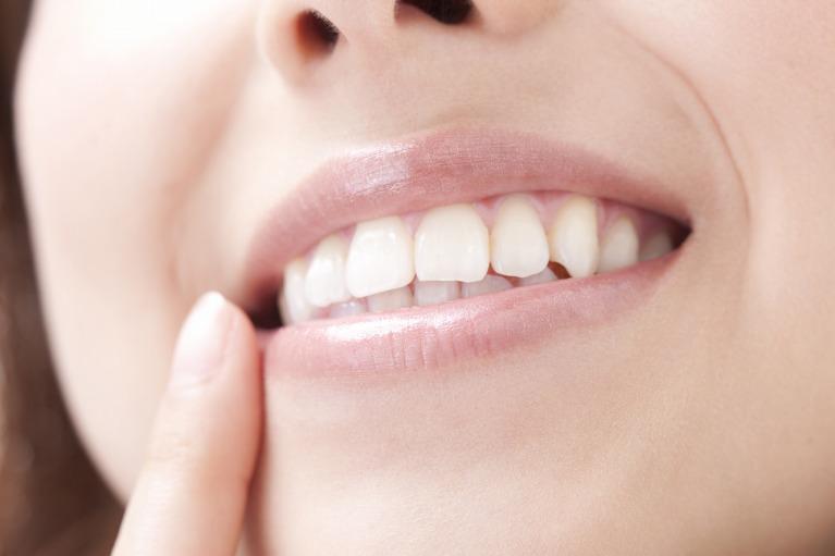 きれいだけでなく、きちんと歯をきれいに保てる審美治療