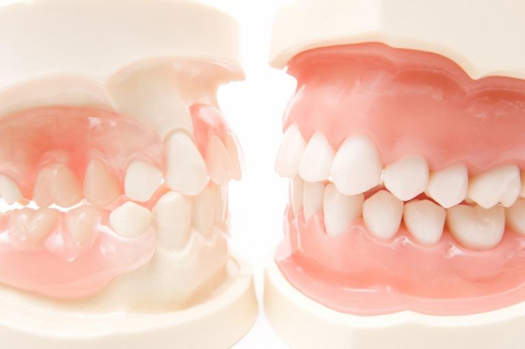 歯周病の怖さ